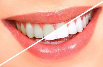 Tẩy trắng răng ở đâu tốt nhất