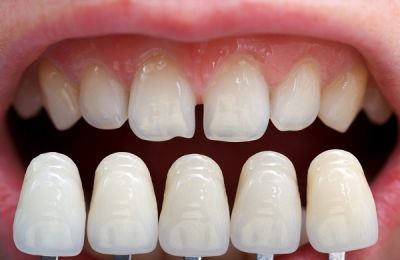 Chăm sóc răng sứ veneer