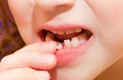 Thay răng sữa