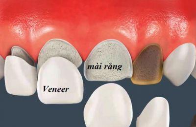 So sánh giữa mặt dán sứ veneer và bọc răng sứ thẩm mỹ