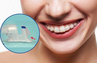 Niềng răng tốt ở tphcm