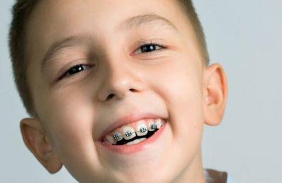 Có nên niềng răng cho trẻ