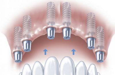 Bảng giá cấy ghép implant
