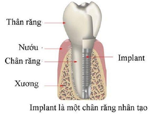 bang gia cay ghep rang implant 1
