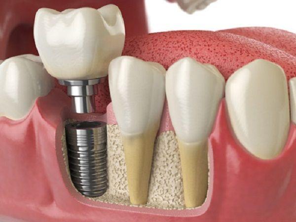 cac loai rang implant 1
