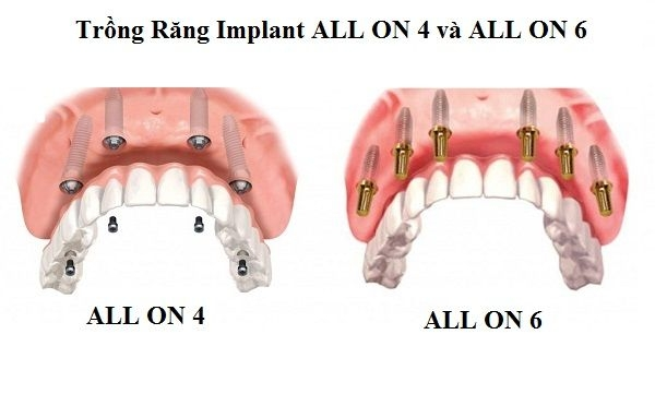 cay ghep implant all on
