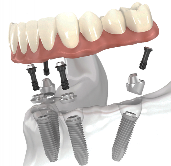 cay ghep implant all on 2