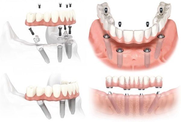 cay ghep implant all on 4