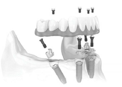Cấy ghép Implant All-on-4
