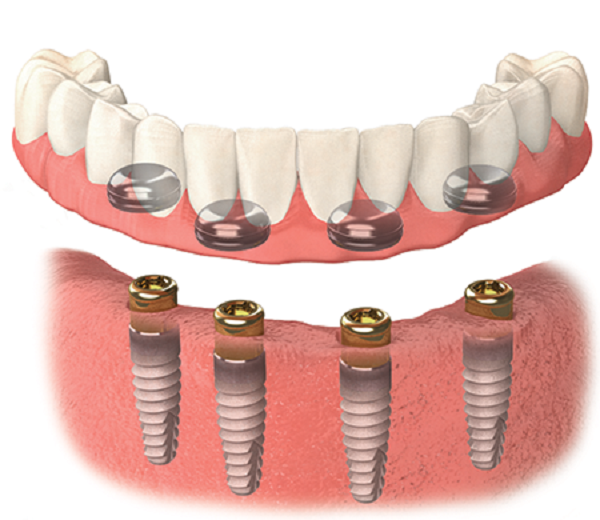 cay ghep implant all on 1