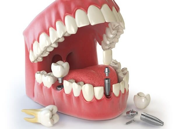 cay ghep implant all on 5