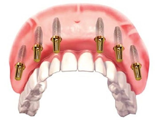 luu y khi trong rang implant 1