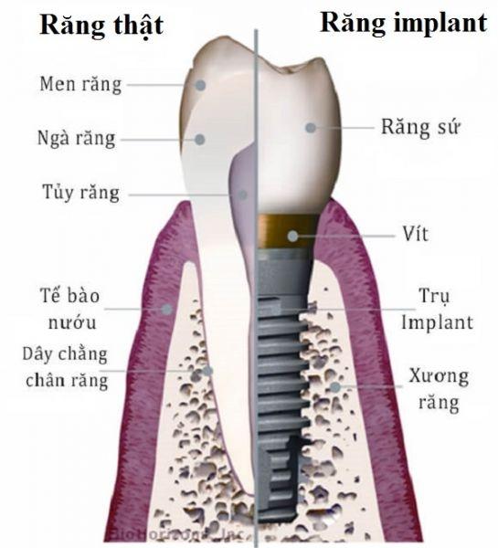 luu y khi trong rang implant 2