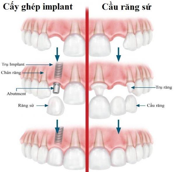 luu y khi trong rang implant 5