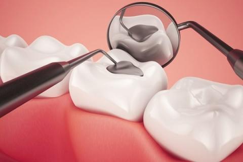 Trám phòng ngừa sâu răng