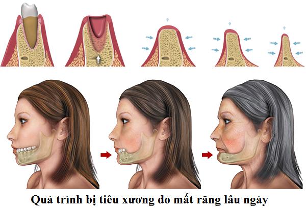 trong rang implant va phuc hinh tuc thi 7