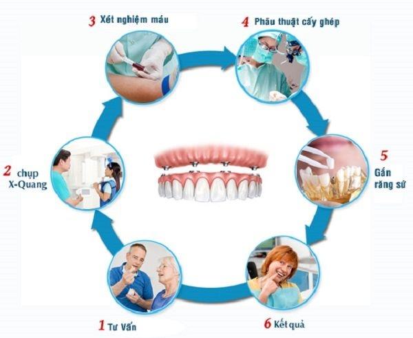 trong rang implant va phuc hinh tuc thi 5