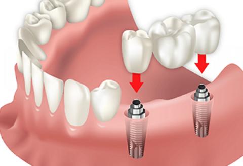 Trồng vài răng implant