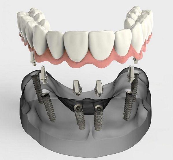 trong vai rang implant 2