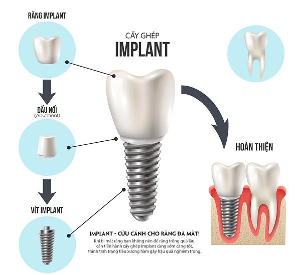 trong vai rang implant 4