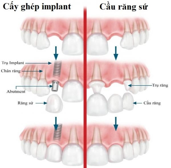 trong vai rang implant 3