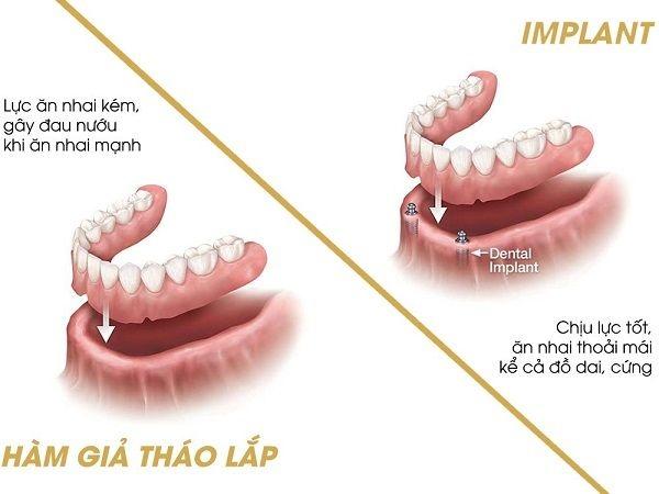 trong vai rang implant 7